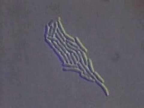 Die Erdnuss von den Würmern