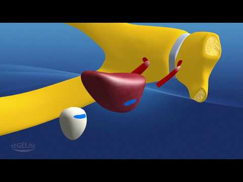 Modificări fibrotice ale prostatei, care este