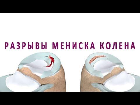 Разрыв и другие повреждения мениска коленного сустава