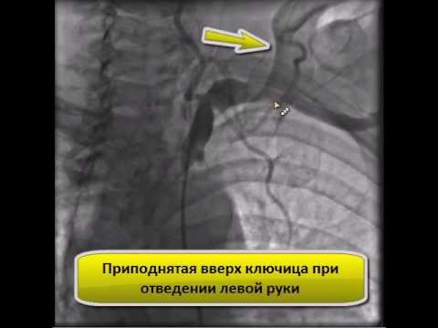 Ангиография при синдроме грудного выхода