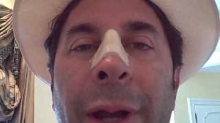 Dr. Paul Nassif — Nasal Injury Journal Day 3