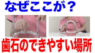 歯石はできやすい場所とできにくい場所がある?