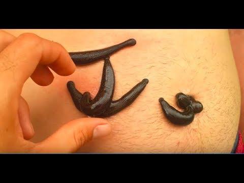 Лечение на прогноза на простатата аденокарцином