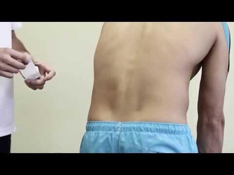 Отжимания и остеохондроза