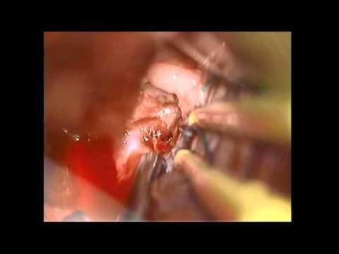 Opérationnel les traitements de la varicosité