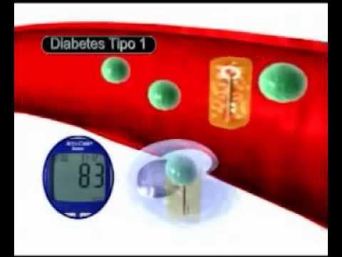Por qué no tener una pista en la diabetes