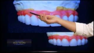 Prótese Total Fixa Sobre Implante Dentário - Tipo Protocolo De Carga Imediata
