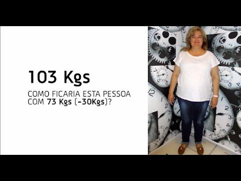 Como ficaria esta pessoa com - 30 kg ?