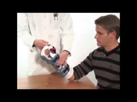Terafleks artrite o artrosi dellarticolazione del ginocchio