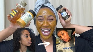 How to get rid of dark spots/acne scars OVERNIGHT!