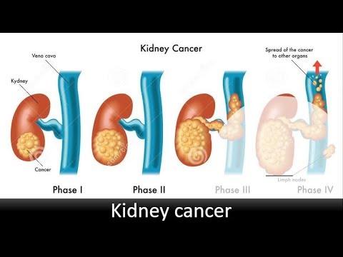 Cancer intestinal avanzado