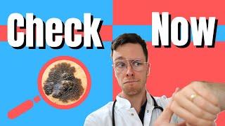 How to do a skin cancer CHECK! - Medical Doctor Explains