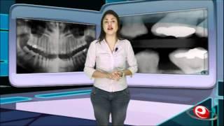 Videoaula | Radiologia Odontológica
