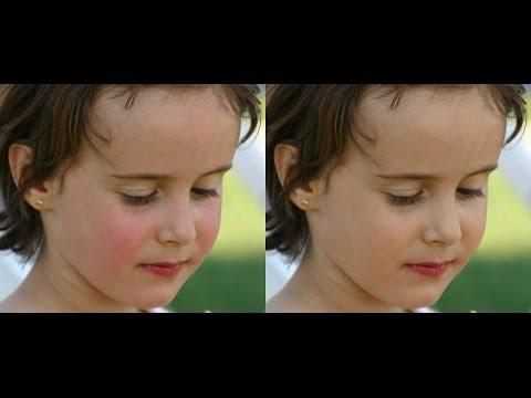 Cibo a eczema su un corpo