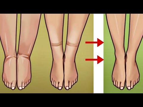 Боли суставы коленей