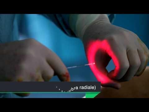 Come togliere lunguento di asterischi vascolare
