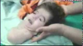 Смотреть онлайн Египетская девочка Манар, у которой две головы