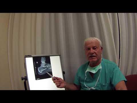 Danza terapia in condrosi toracica e della colonna vertebrale cervicale