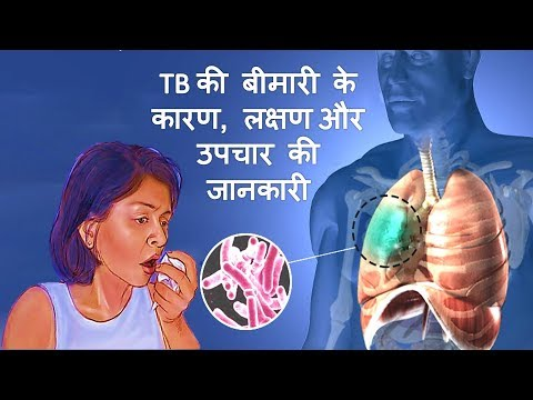 Video Tuberculosis (TB) के कारण, लक्षण और उपचार – Tuberculosis Causes, Symptoms & Treatment in Hindi