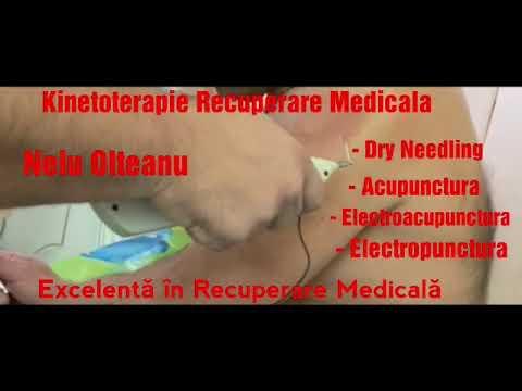 Tratamentul articular cu macrou