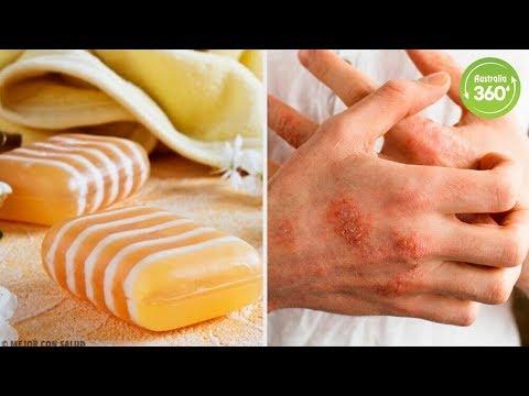 Dermatite di atopic e morbillo