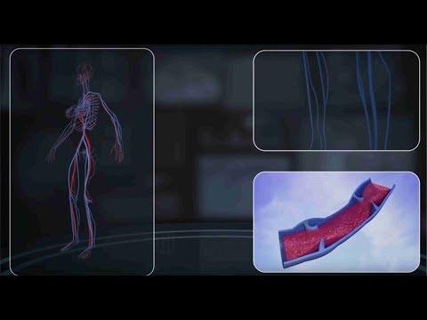 Trofik ülser. Venöz ülser. Ayak yarasının tedavisi.Bacak trofik ülser tedavisi