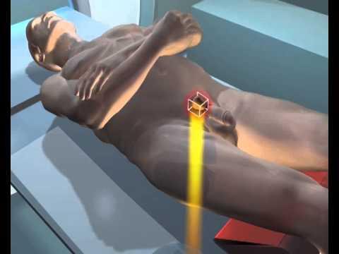 Prostatitida léčba léčiv