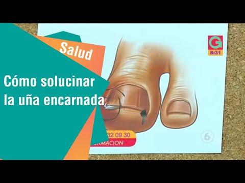 La aplicación nitrofungina al hongo de las uñas