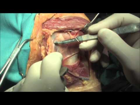 Termini di disabilità nel ginocchio sinovite