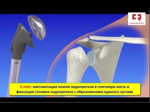 Эндопротезирование плечевого сустава: основные этапы, техника операции по замене плеча