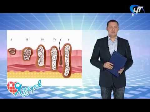 Кровь на гепатит в и с карт тест