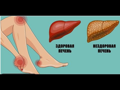Желтуха при анемии патогенез