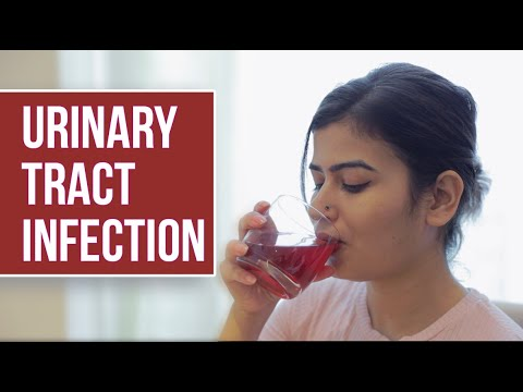 Screening papillomavirus positivo