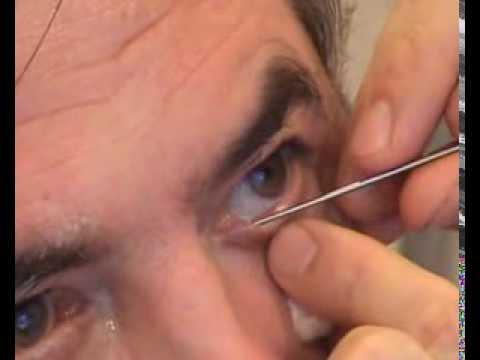 Хуже зрение после контактных линз