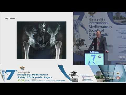 B Dogan - Direct anterior approach for total hip arthroplasty