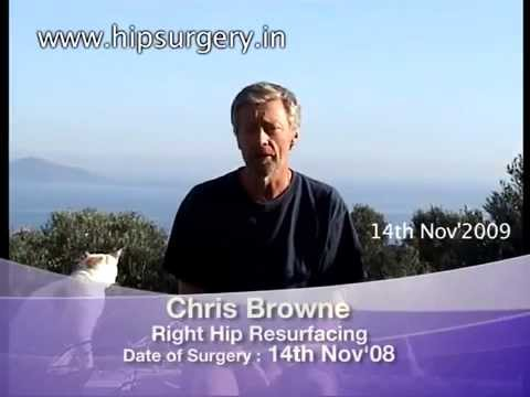 Hip-resurfacing-surgery-HRS-India-Life-after-1-year