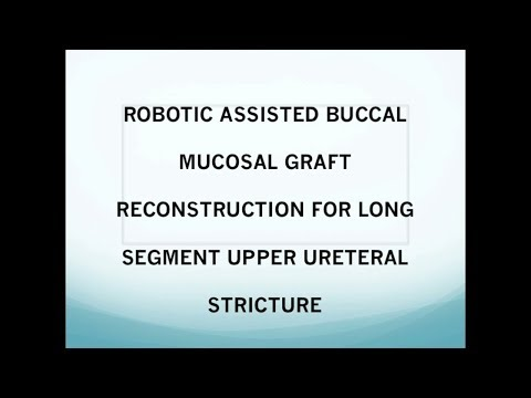 ROBOTIC ASSISTED BUCCAL MUCOSAL GRAFT RECONSTRUCTION  FOR LONG SEGMENT UPPER URETERAL STRICTURE