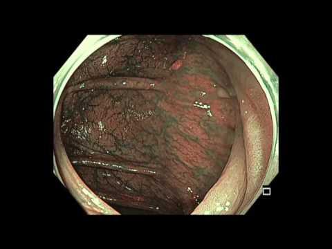 Colonoscopy: Transverse Colon - Subtle Lesion