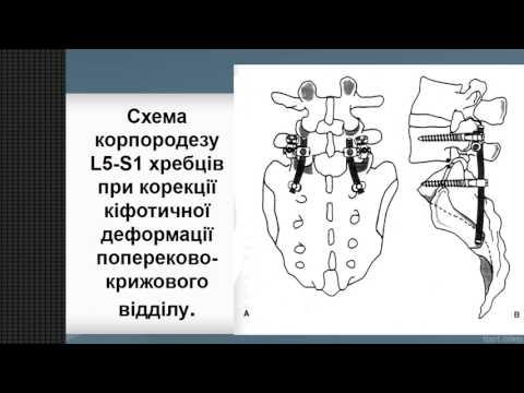 Как исправить кифоз грудного отдела в 35