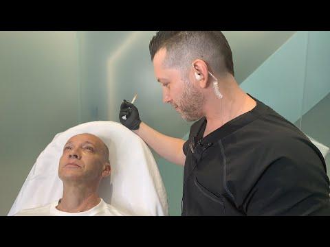 Facial Sculpting