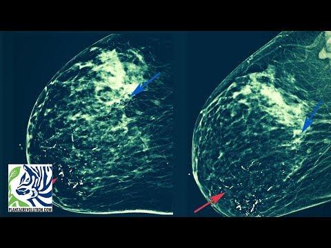 Thrombophlebitis e sintomi phlebitis