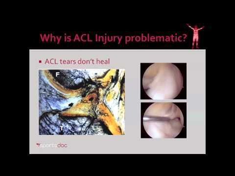 ACL: Purpose & Problems