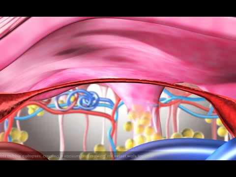 La varicosité chez les enfants 2 ans