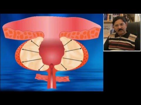 Anatomia 3D prostaty do TURP