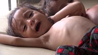 These are the cries of Yemen