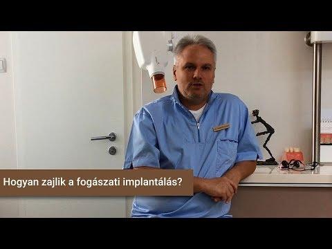 Hogyan zajlik a fogászati implantálás?