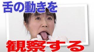 口腔内観察では舌を動かしてもらう!