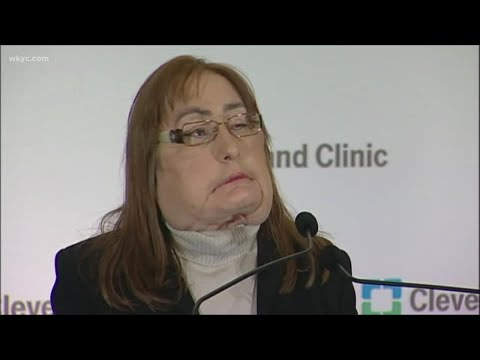 Doctors salute the life of Connie Culp, recipient of the first US face transplant at Cleveland Clini