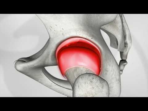 Benda per il fissaggio del ginocchio