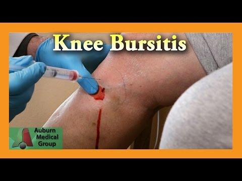 LFK arthritischen Kniegelenken von 3 Grad